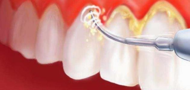 إزالة جير الأسنان بطريقة طبيعية موضوع