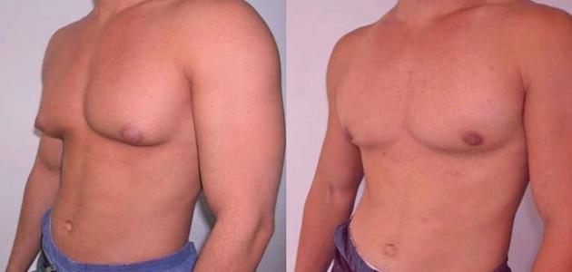 نتيجة بحث الصور عن تصغير الثدي للرجال