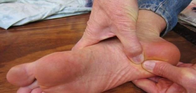 أسباب حكة باطن القدم