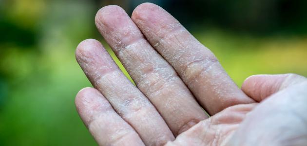 تقشر جلد الأصابع