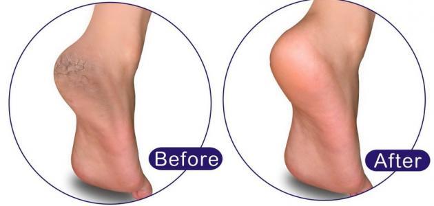 كيفية إزالة الجلد الميت من القدمين