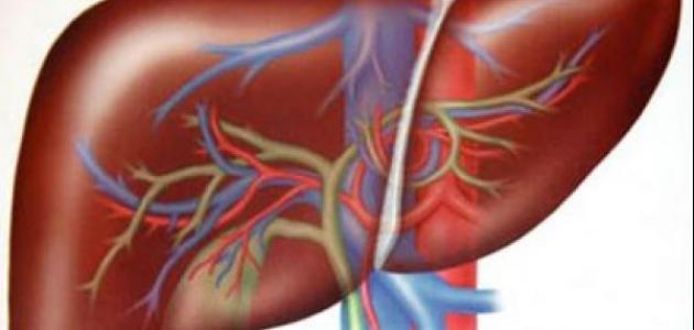علاج تضخم الكبد
