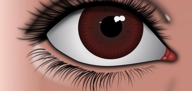 علاج انتفاخ العين بالأعشاب