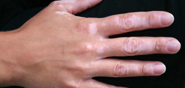 علاج البهاق بالادوية والاشعة