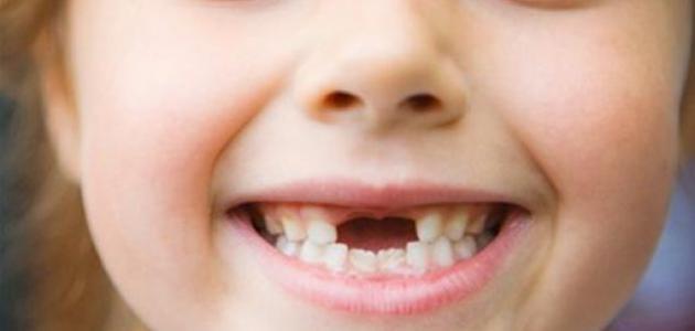 علاج تسوس الأسنان اللبنية عند الأطفال