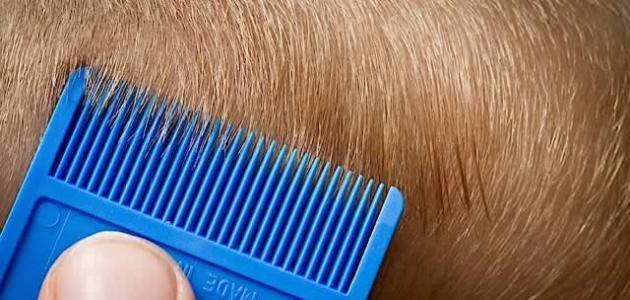 وسائل لإزالة القمل والصيبان من الشعر