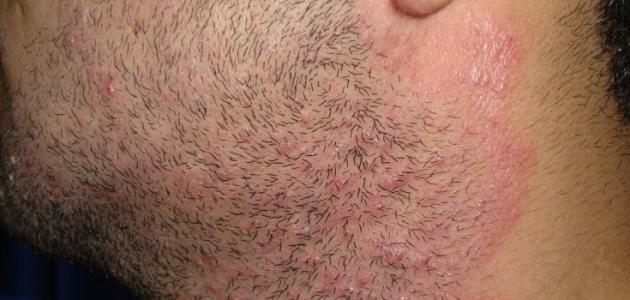 أسباب فطريات الجلد