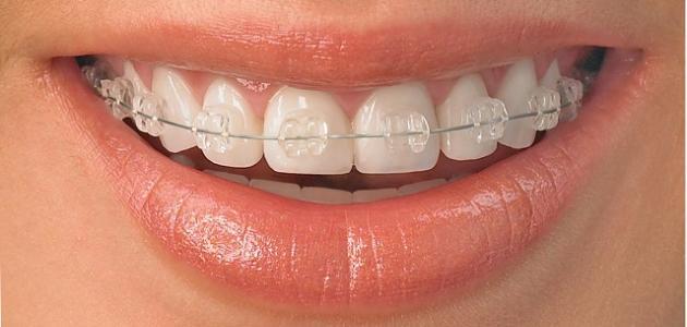 كيفية تركيب تقويم الأسنان