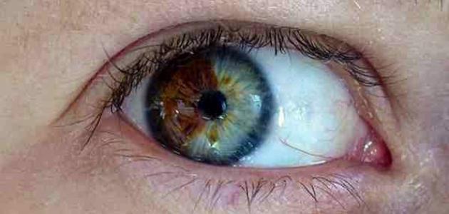 تغير لون العين