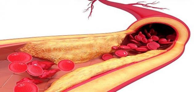 زيادة الدهون في الدم