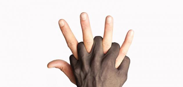 تعريف العنصرية