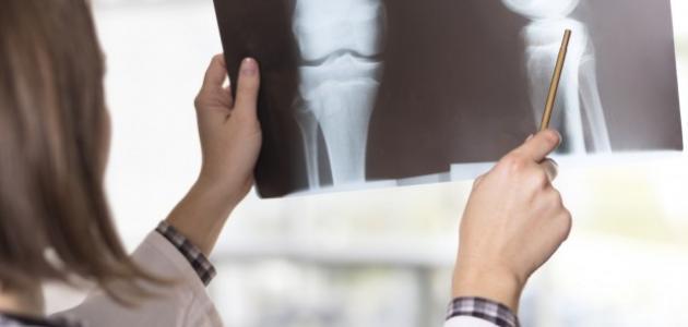 زيادة كثافة العظام