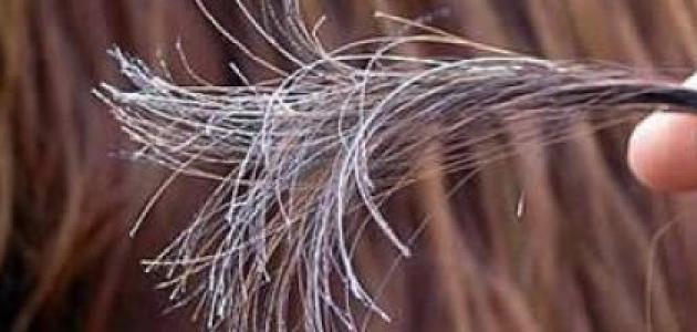 كيف أعالج تقصف الشعر طبيعياً