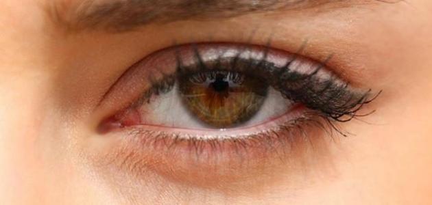 طريقة إزالة الهالات السوداء حول العين