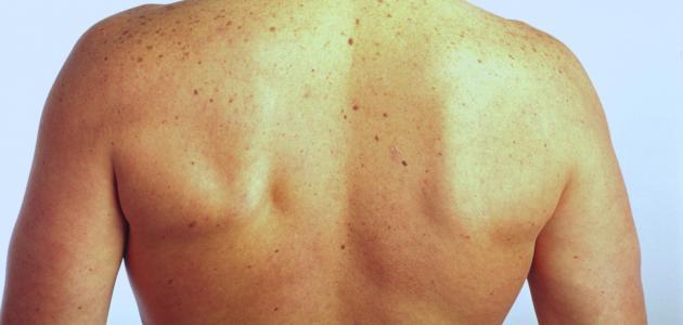 كيفية تقوية عضلات الظهر