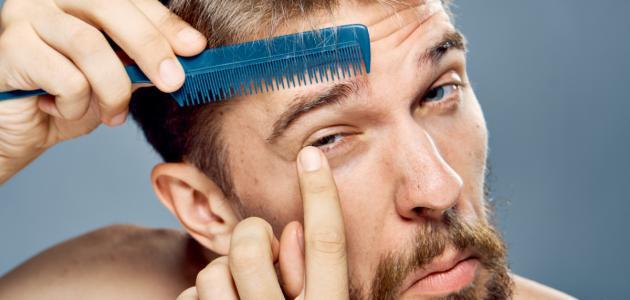 تساقط شعر الحواجب