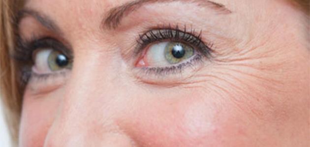 وصفات لإزالة تجاعيد تحت العين