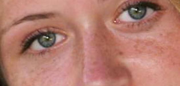 وصفات لإزالة الكلف عن الوجه