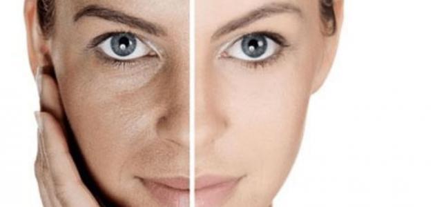 وصفة مجربة لإزالة الكلف من الوجه