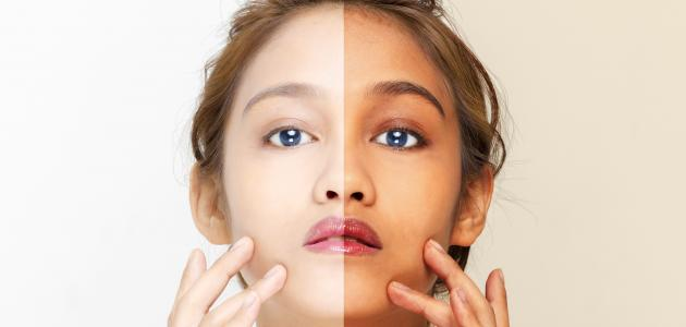 وصفات طبيعية سريعة لتبييض الوجه