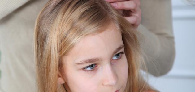 وصفة لإزالة قمل الشعر