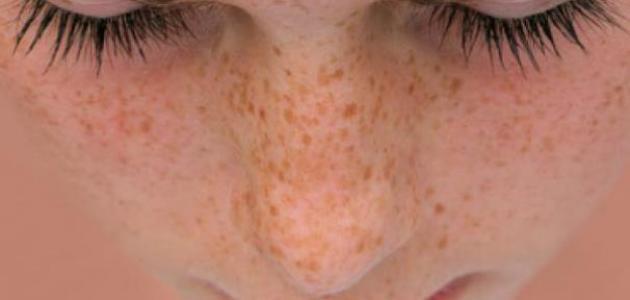 وصفات لإزالة الكلف والنمش من الوجه