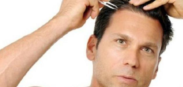 ظهور الشعر الأبيض عند الشباب