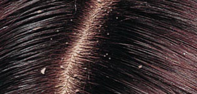 طريقة علاج قشرة الشعر