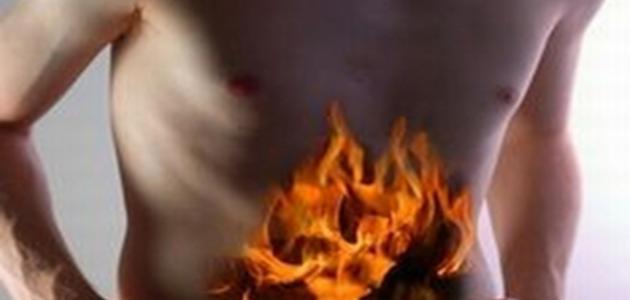 ما علاج حرقة المعدة