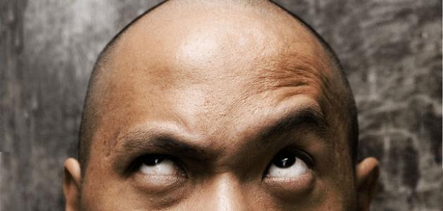 كيف تحافظ على شعرك من الصلع