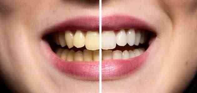كيف تعالج تسوس الأسنان بالأعشاب