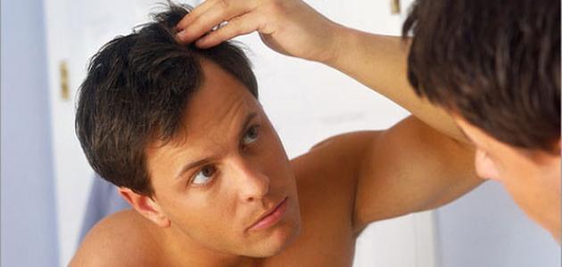 كيف تحافظ على شعرك من التساقط للرجال