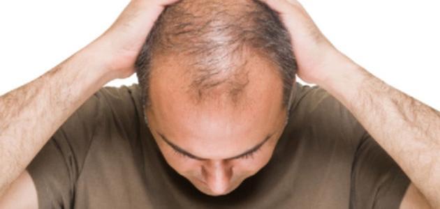 كيف تعالج تساقط الشعر للرجال