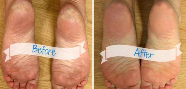 ما سبب جفاف القدمين