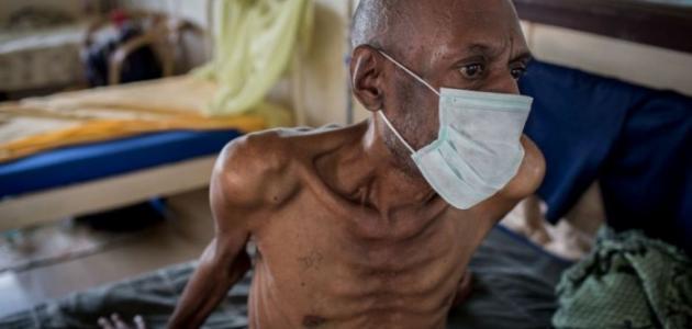 أخطر أمراض العالم
