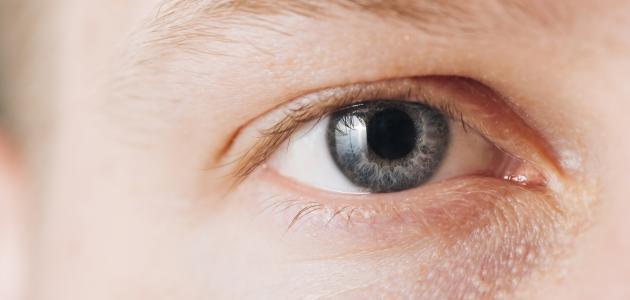 كيفية التخلص من هالات العين السوداء
