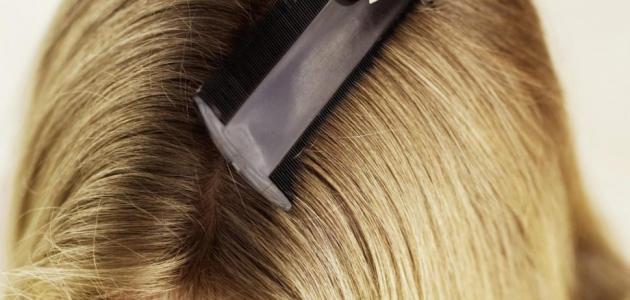 كيف تقضي على القمل في الشعر