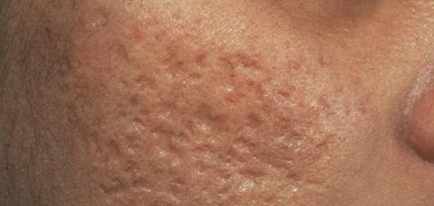 طرق لإزالة آثار الحبوب في الوجه