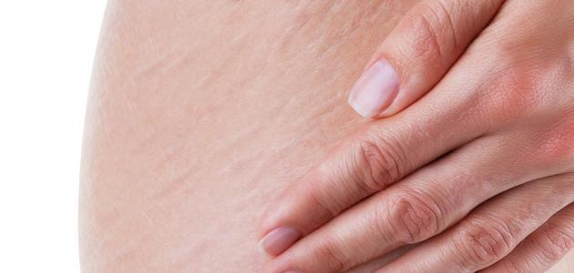 وصفة لإزالة تشققات الجسم