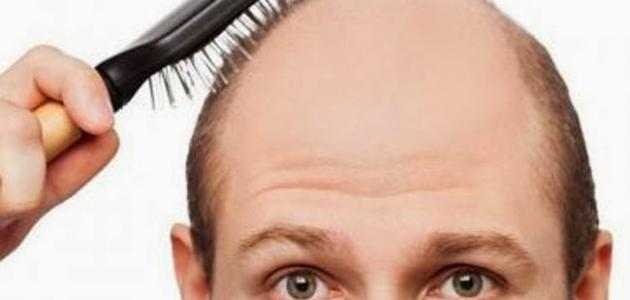 معلومات عن زراعة الشعر