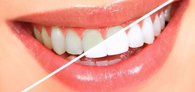 طرق تبييض الأسنان من أول مرة