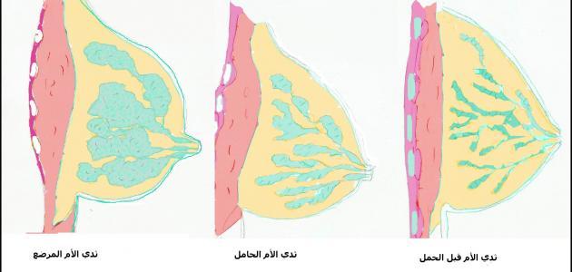هل توجد غدد في الثدي