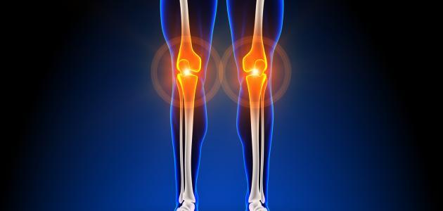 ما سبب آلام العظام