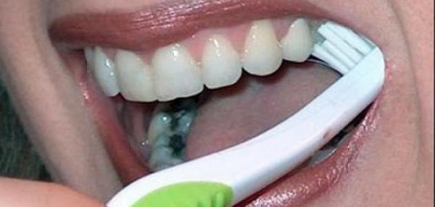 طريقة التخلص من تسوس الأسنان في المنزل
