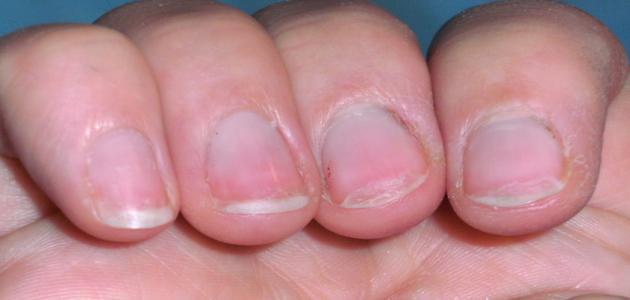 ما سبب تقصف الأظافر