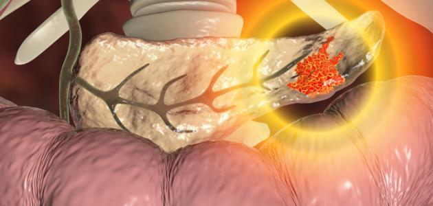 سرطان البنكرياس وعلاجه