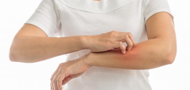 هل نقص فيتامين د يسبب حكة في الجسم