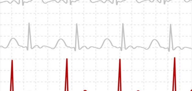 طريقة قراءة تخطيط القلب