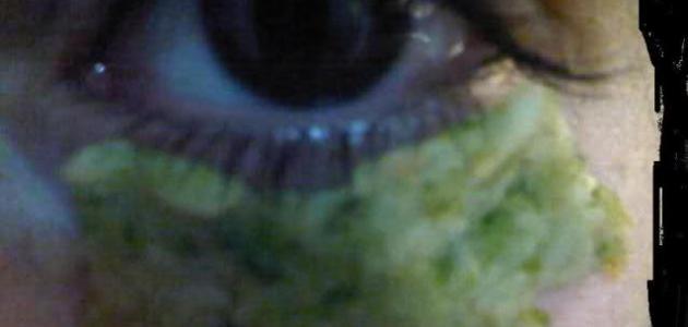 طريقة للهالات السوداء تحت العين