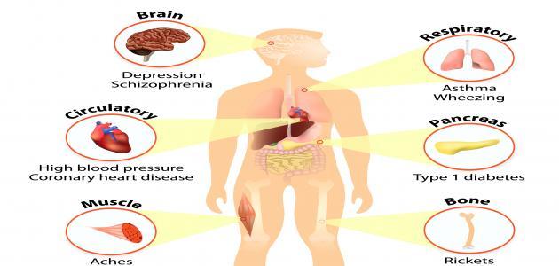 ماذا يسبب نقص فيتامين د في الجسم